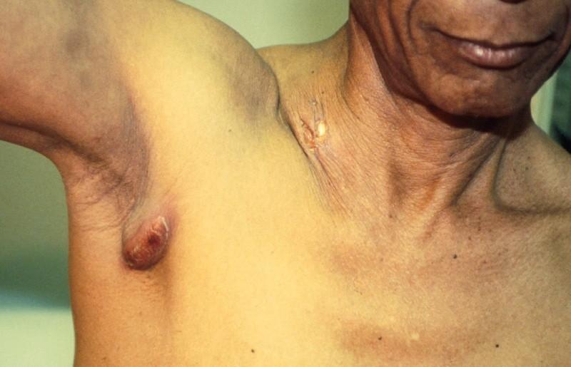 Лимфоузлы под мышкой: причины воспаления, лечение, фото